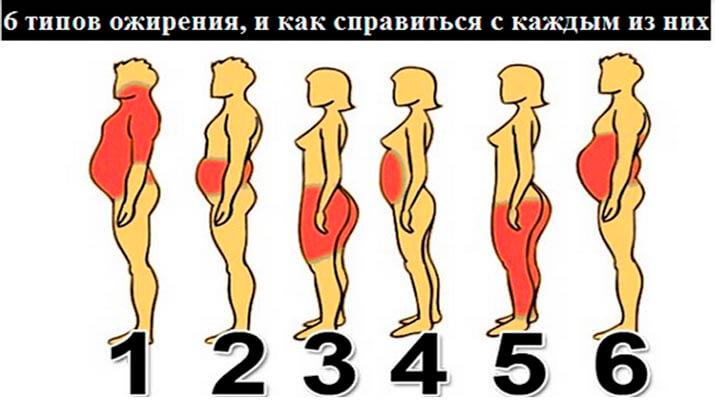 6 Типов Ожирения: Программа Снижения Веса для Каждого Типа!